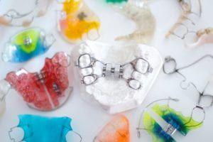 child orthodontic appliances