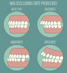four different types of malocclusion