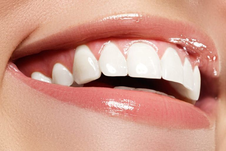 Teeth Whitening Closeup image