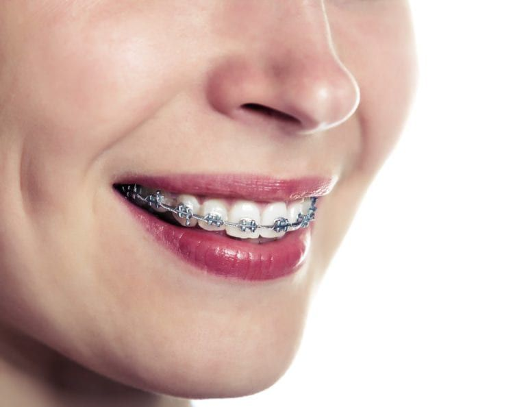 Smiling women with braces