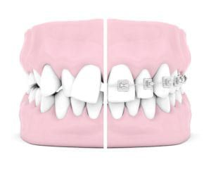 braces before and after tooth model