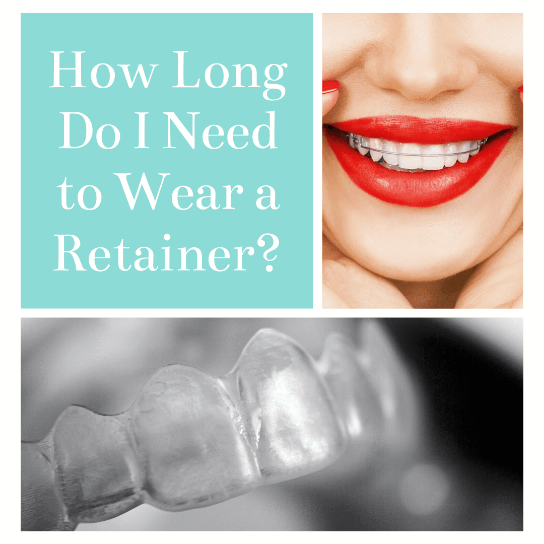 How Long Do I Need to Wear a Retainer?