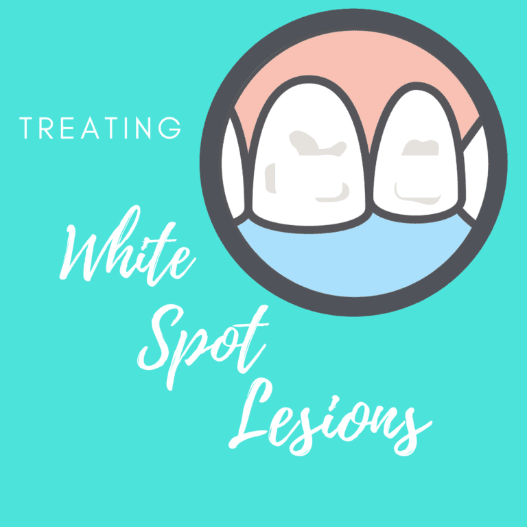 Treating White Spot Lesions (1)