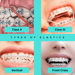 Types of Elastics