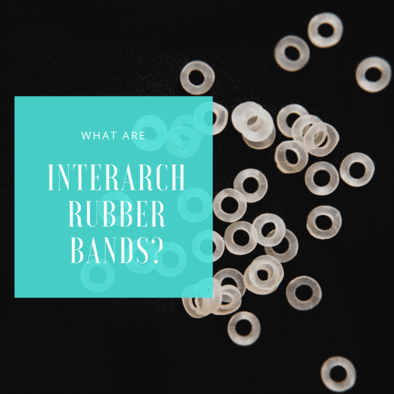 What Are Interarch Rubber bands 2