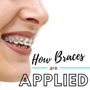 How Braces are Applied