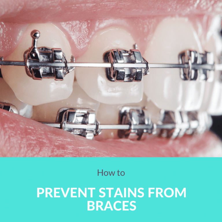 How to Prevent Stains From Braces