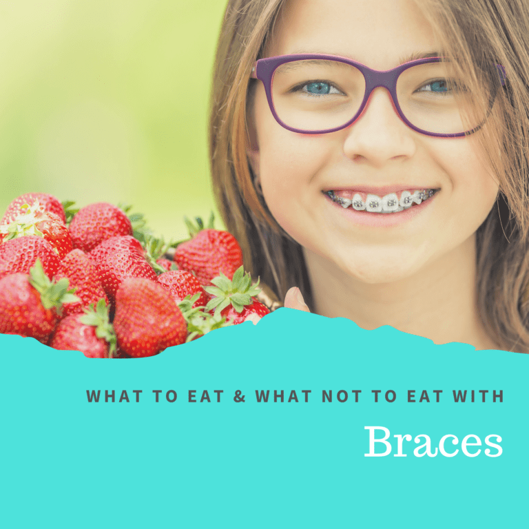 What to Eat and What Not to Eat with Braces