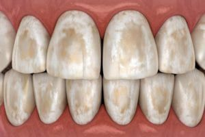 demineralized teeth