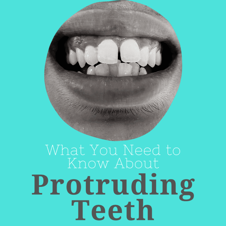 What You Need to Know About Protruding Teeth