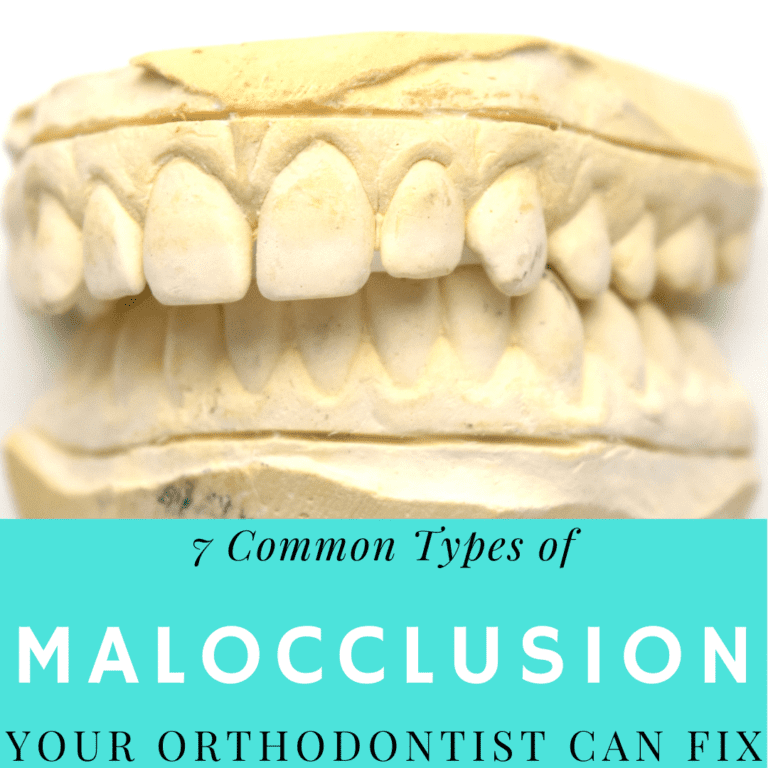 7 Common types of malocclusion (1)