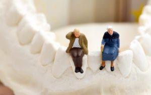 Elderly patients on a jawbone model