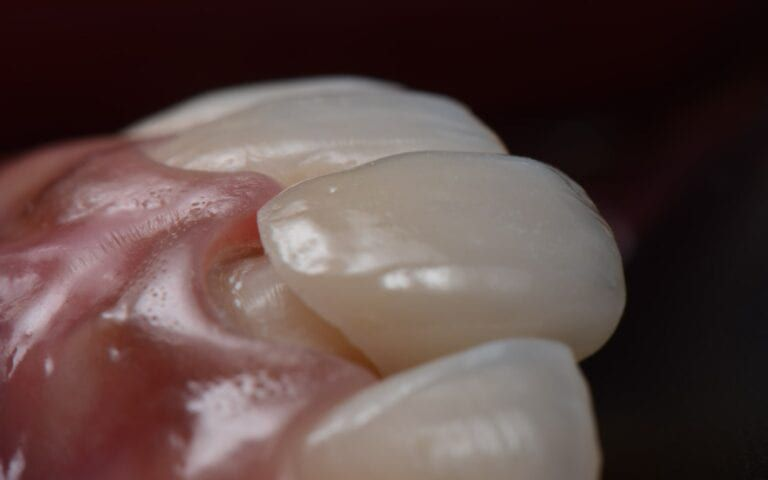 Orthodontic bonding being put in place
